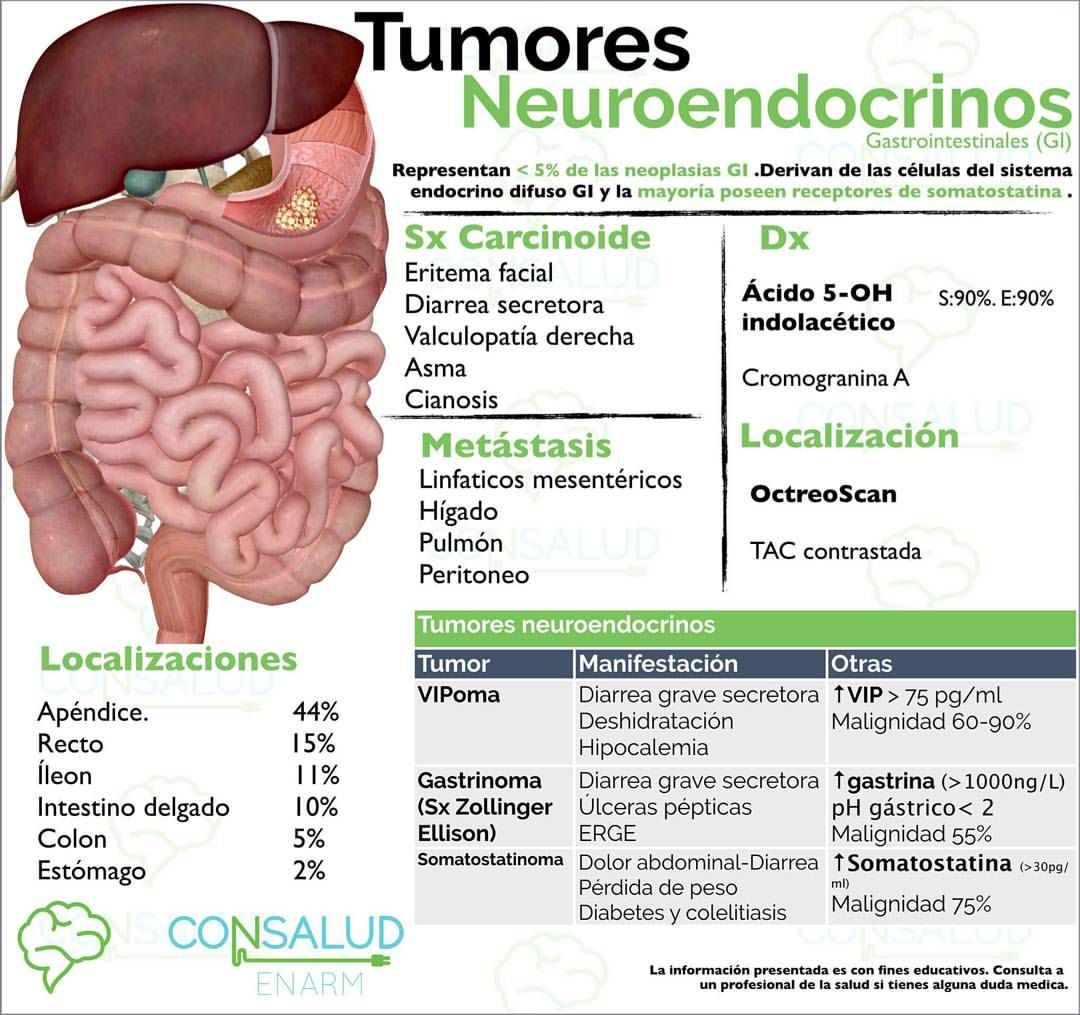 cancer neuroendocrino higado