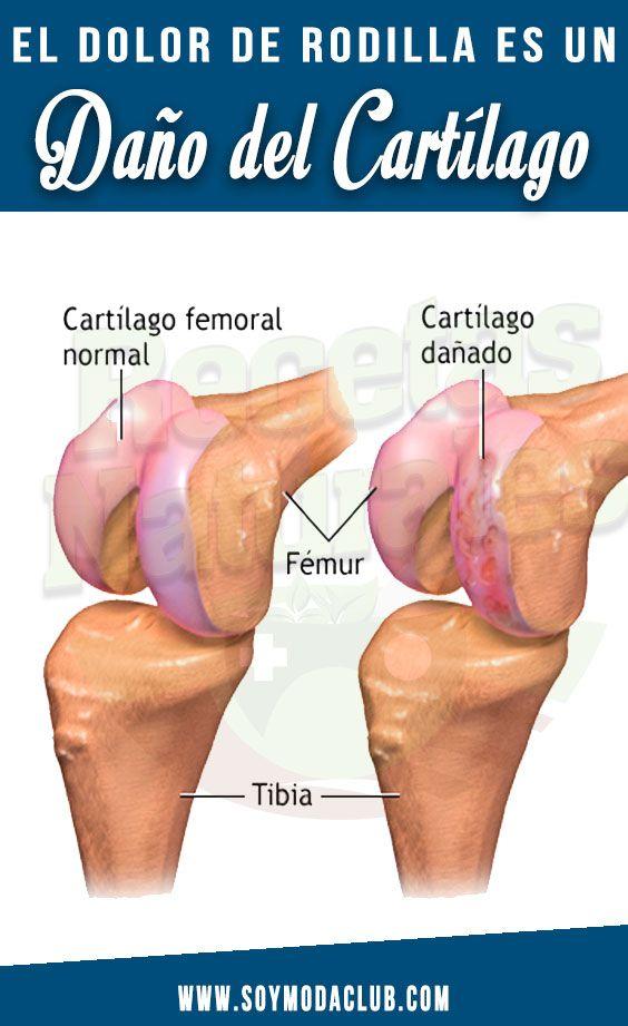 El dolor de rodilla es un daño del cartílago. - Soy moda..