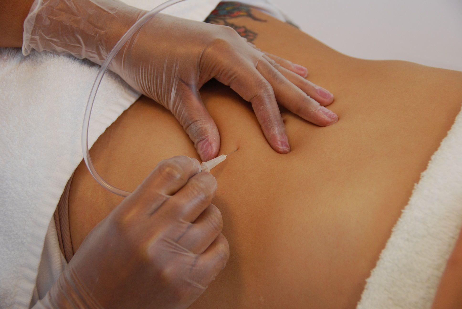 Carboxiterapia Celulite Procedimentos Esteticos E Vacuoterapia