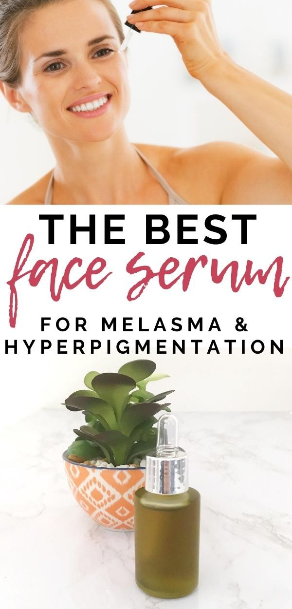 A simple DIY serum for us gals that suffer with melasma and hyperpigmentation. This awesome combination of oils and essential oils will lighten up melasma and dark spots and your skin will look glowy and beautiful. The perfect natural remedy for melasma! #greenbeauty #skincare