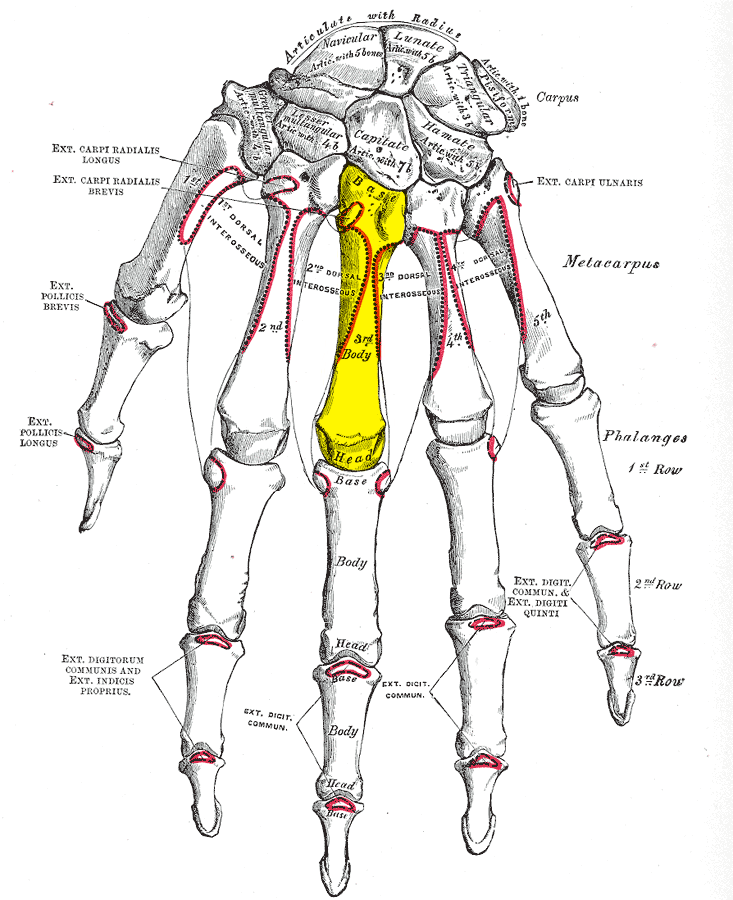 On the 3rd metacarpal (as viewed on the hand\'s dorsal side) there is ...