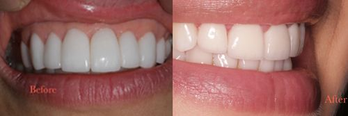 Beverly Hills Cosmetic Dentist Dr. Joseph Goodman is dedicated to your individual dental needs & offers tooth whitening, porcelain veneers, dental implants  #beverlyhills  #cosmetics  #dentist
