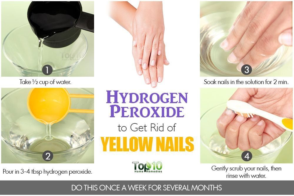 227c5ae47f9032fc8a6f4ee3ca38038d - How To Get Rid Of Yellow Nails With Hydrogen Peroxide