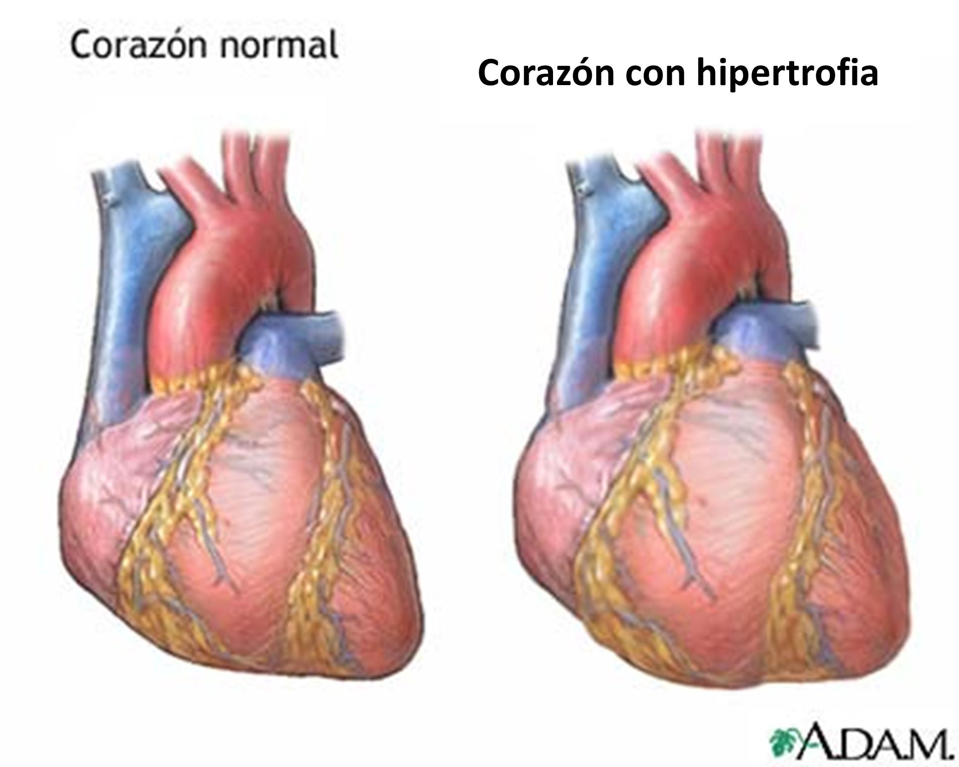 inflamacion de los musculos del corazon