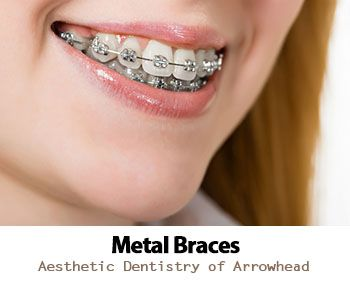 Are You Thinking About Straightening Your Teeth Learn About The Different Types Of Braces In Glendale Including Met Aesthetic Dentistry Types Of Braces Braces