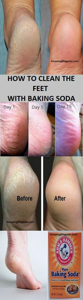 how to clean feet with baking soda