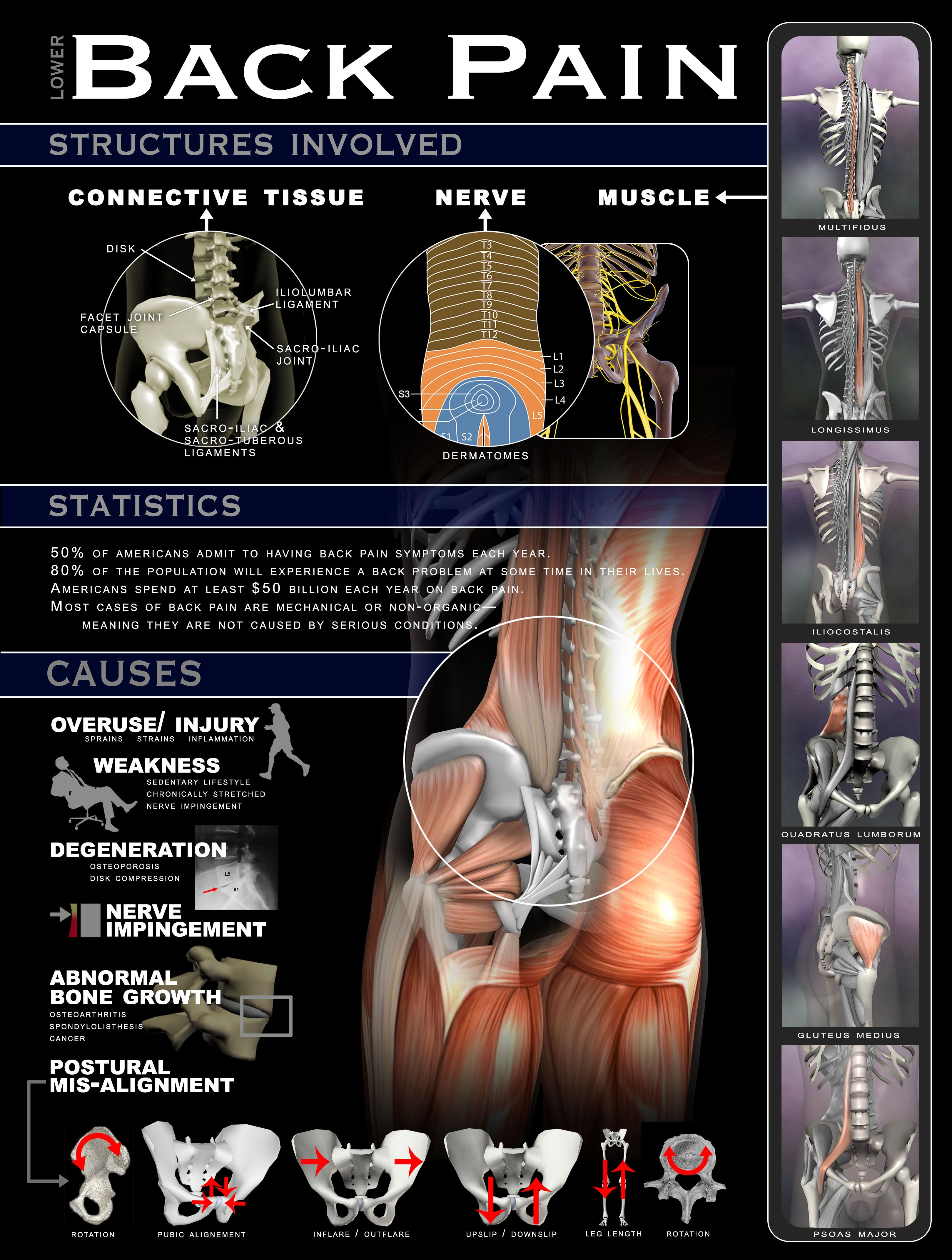 Anatomy of Back Pain. A great reference for massage and fitness ...
