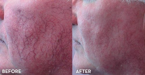 get rid of veins on face
