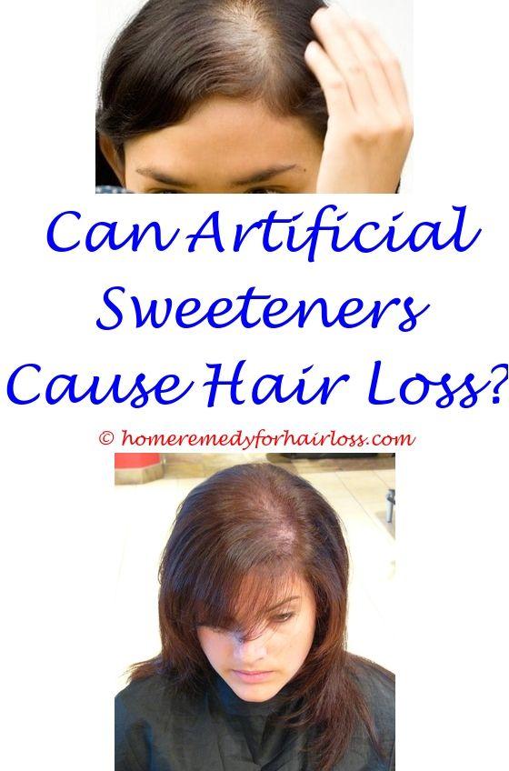 Hair Loss Men   Hair loss reasons, Hair loss and Hair loss treatment