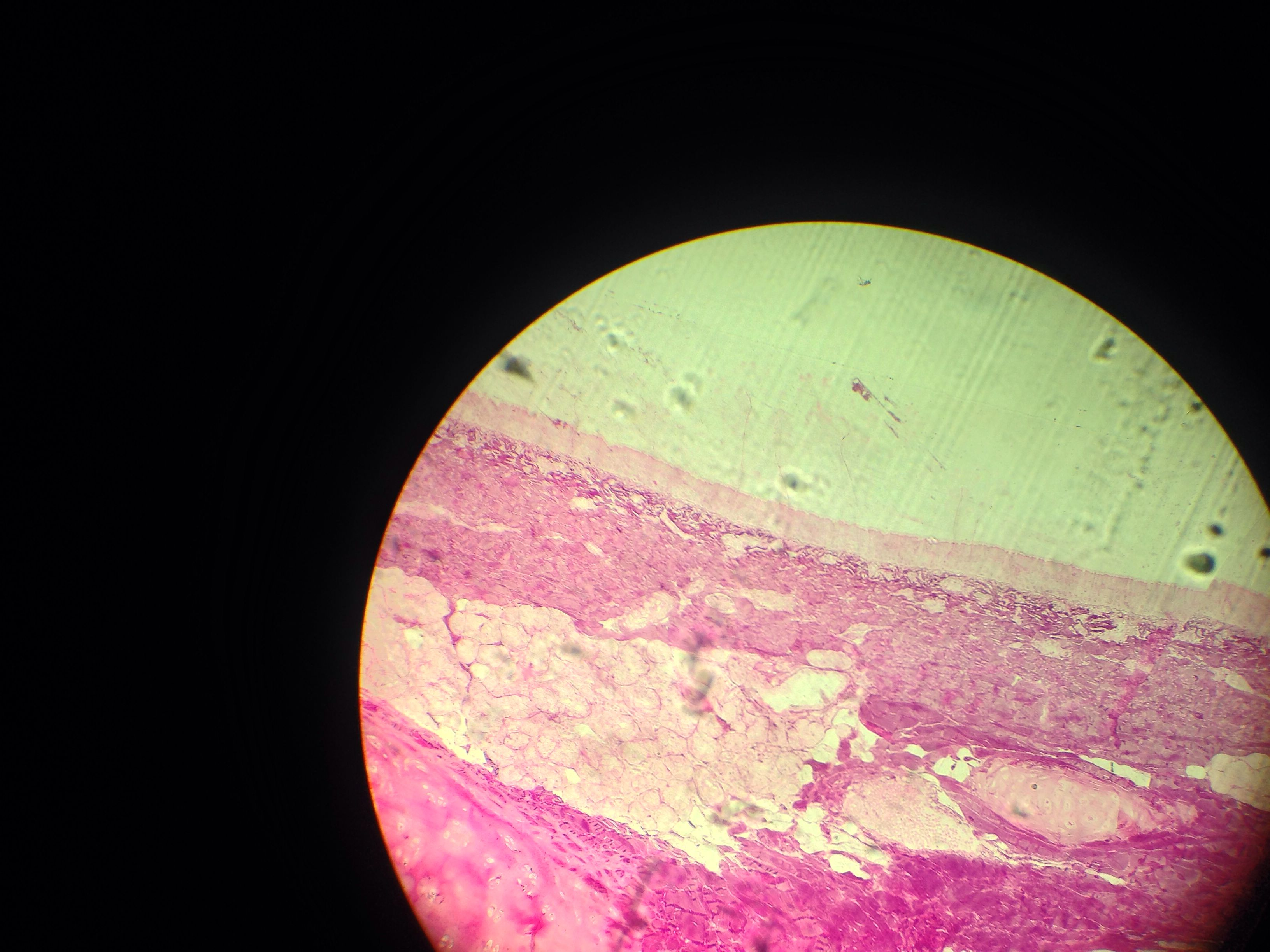 Enlarged Microscope Slide Pic Of Trachea Anatomy And Physiology 2