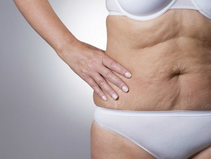 средство для похудения женщин на живот