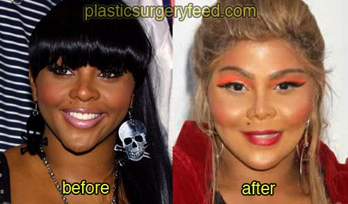 Lil kim before surgery