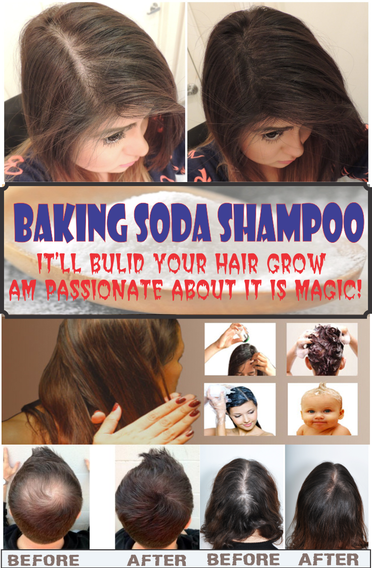 Add These Two Ingredients To Your Shampoo And Say Goodbye To Hair Loss Forever Baking Soda For Hair Grow Hair Hair Loss Remedies