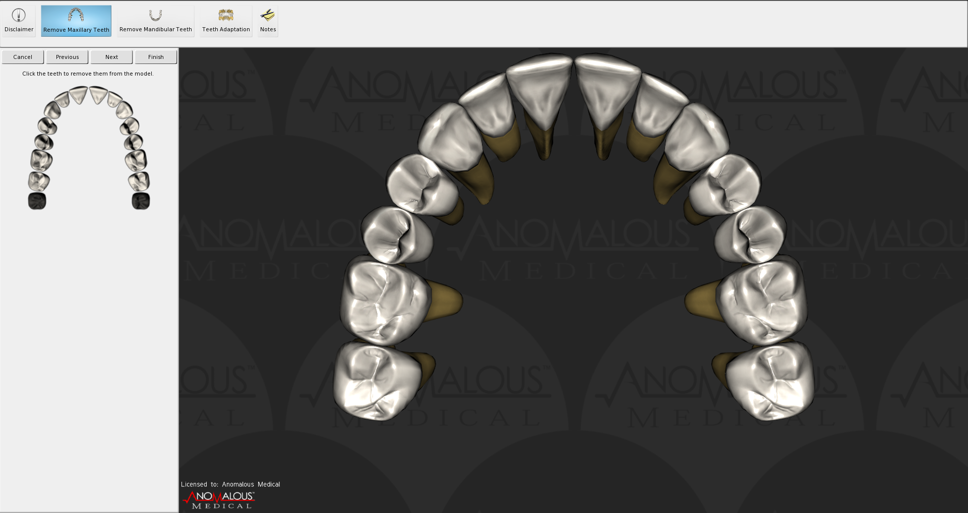 Extracting teeth from 3D model in Anomalous Medical.   Armed to the ...