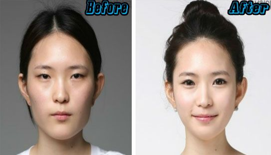 South Korean Plastic Surgery Cost And Procedures Laser Eye Surgery Cost Double Eyelid Eyelid Surgery