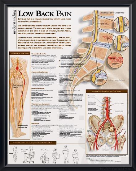 Low Back Pain Chart 20x26 | Pinterest | Degenerative disease ...