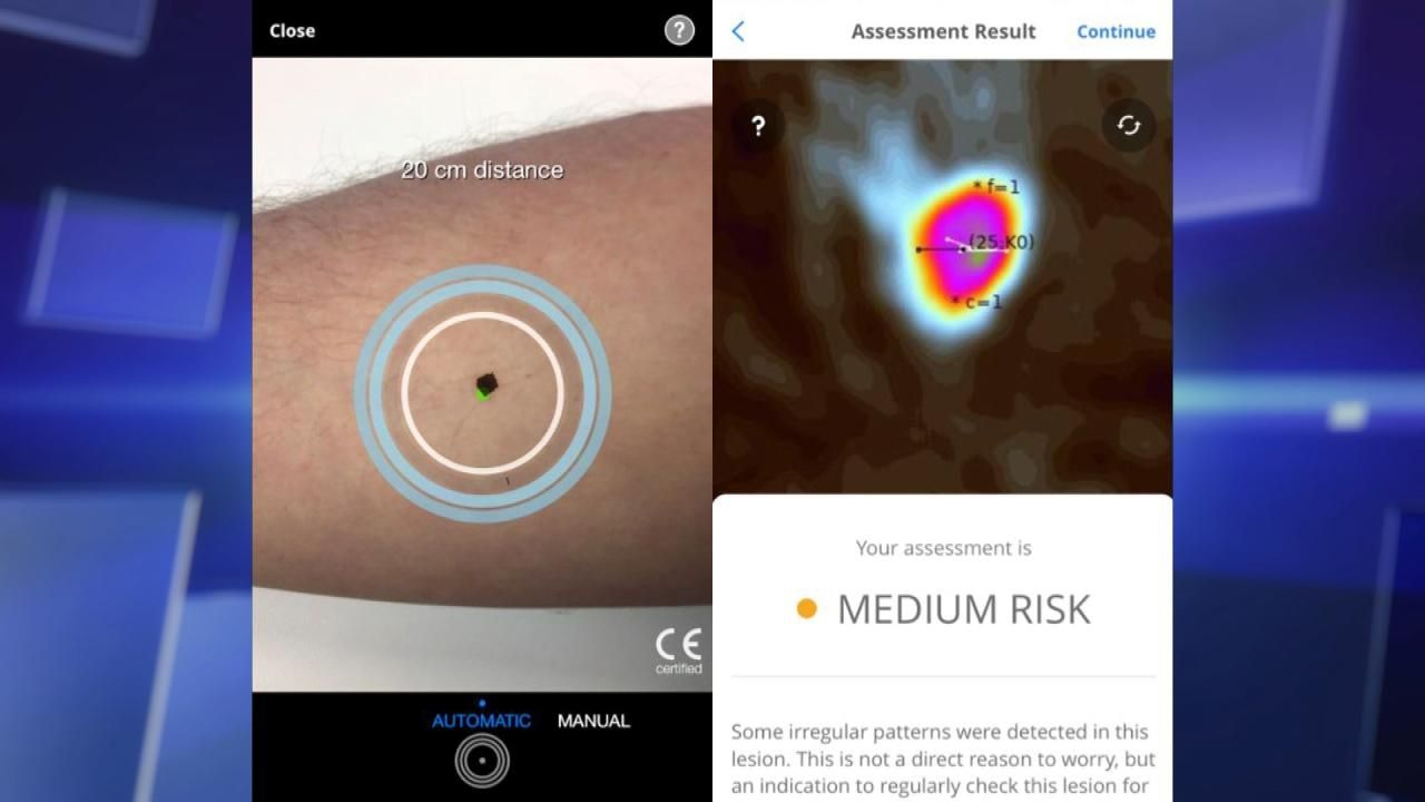 Hope or Hype: Phone App Detects Cancer | medical | Pinterest