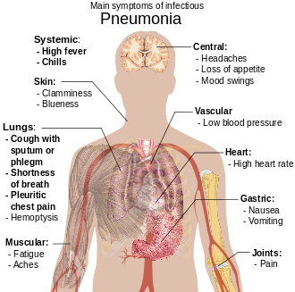 a diagram of the human body outlining the key symptoms of pneumonia