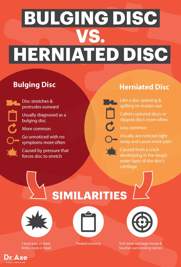 Herniated disc - the cause of acute back pain