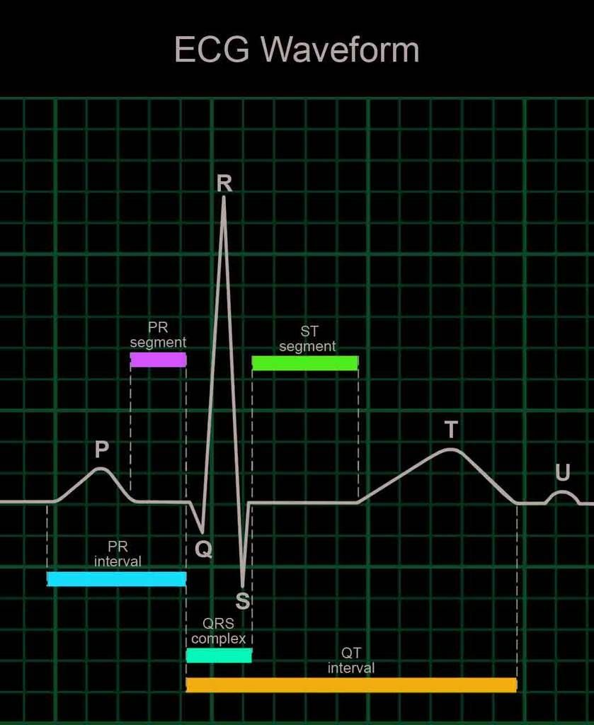 ECG Waveform Nclex, Pharmacology nursing, Nclex rn review
