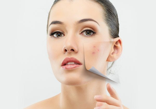How To Remove Pimples Overnight