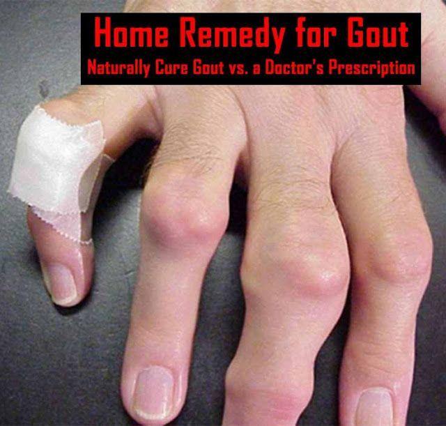 gout home remedy treatment gout damage to ankle gout treatment holistic  medicine