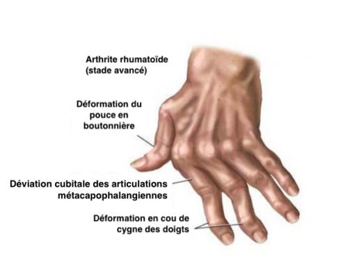 Bienfaits Boswellia - L'Asthme : tout savoir sur ses symptômes et traitements - Fifty ...