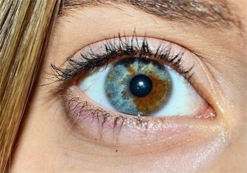 Hétérochromie hétérochromie irienne sectorielle. | medpict | pinterest | ojos