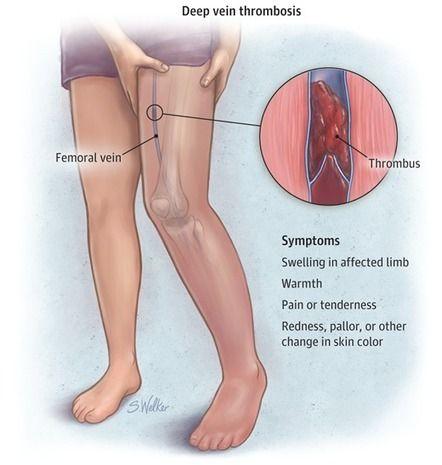 Deep Vein Thrombosis Heart And Vascular Health Vein Thrombosis