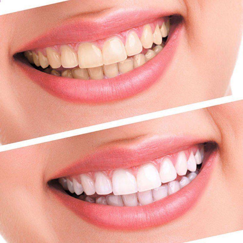 Pin On Sensitive Teeth