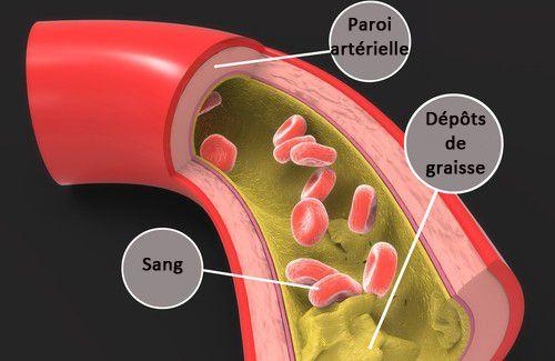 Remèdes maison pour abaisser le cholestérol - Améliore ta Santé