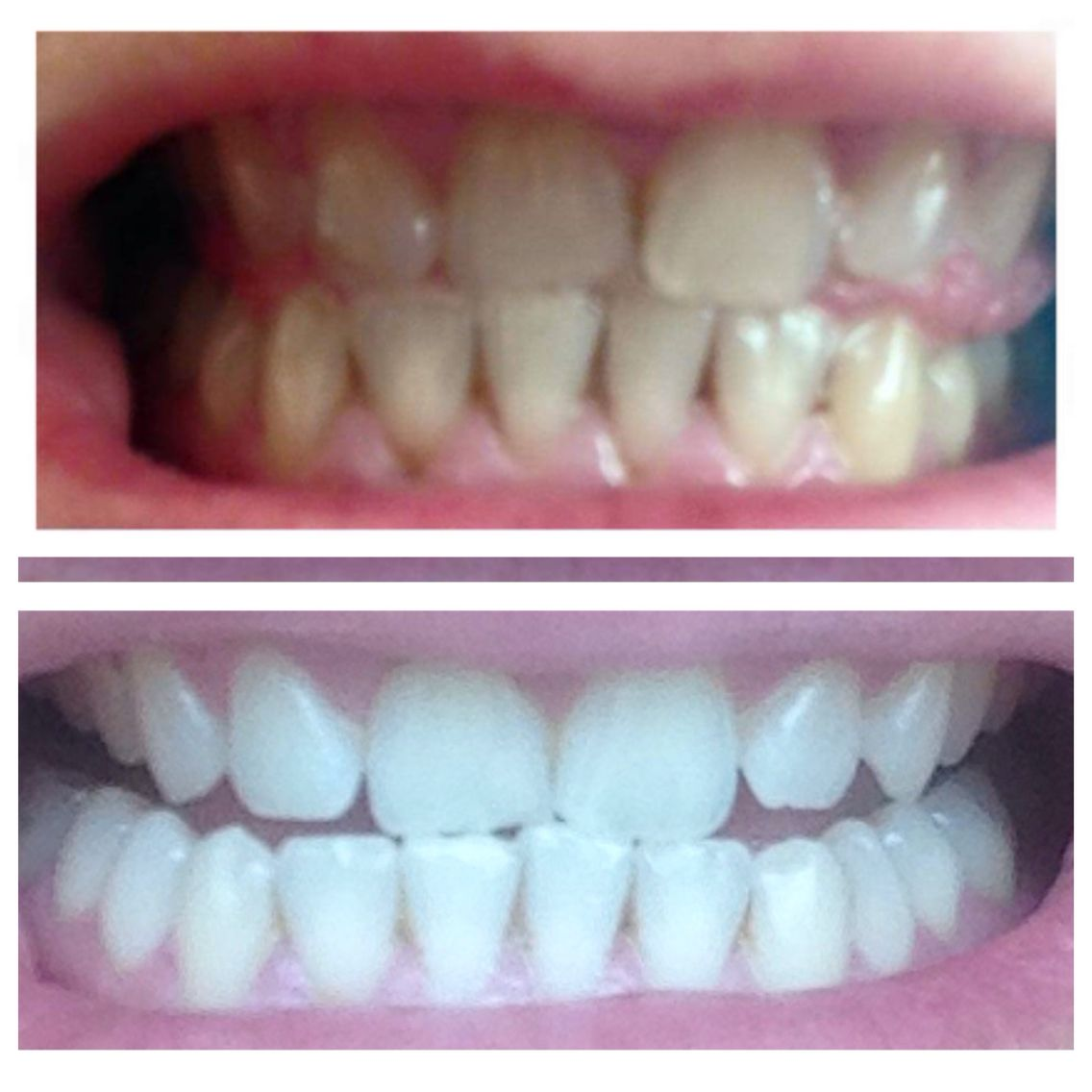 Peroxide free toothpaste- 4 days in between