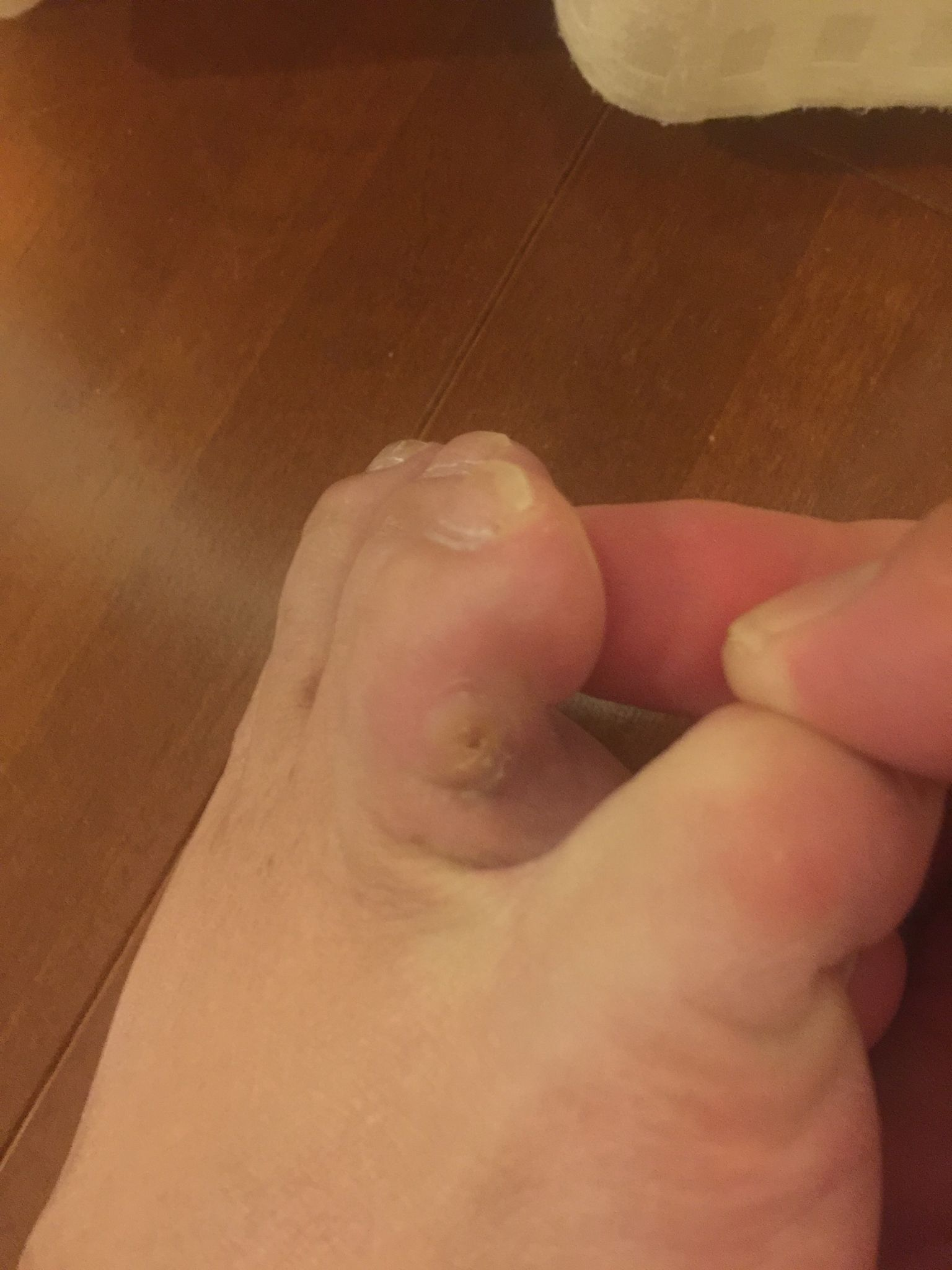 足 イボ 治療 法