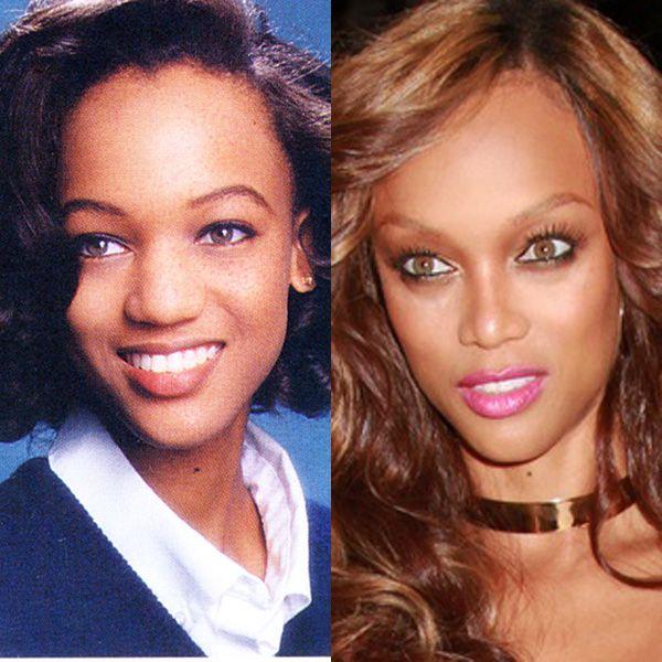 Tyra Banks Avant Et Après Chirurgie Esthétique