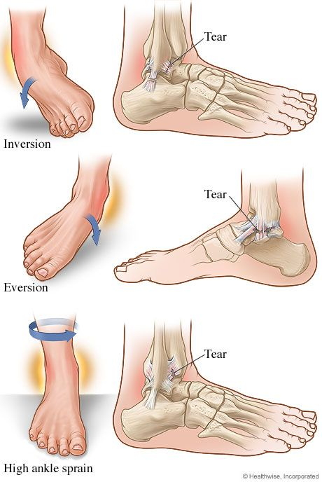 Ankle Injuries Causes And Treatments Ankle Sprains Pinterest
