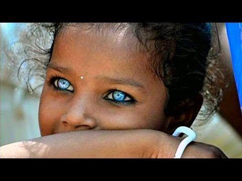 Dr Morse 39 S Amazing Iridology Lesson True Brown Eyes Vs True