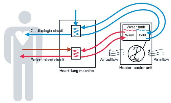 Schematic Representation Of Heater Cooler Circuits Tested For Transmission Of Mycobacterium Chimaera During Ca Disinfect Air Ventilation System Air Ventilation