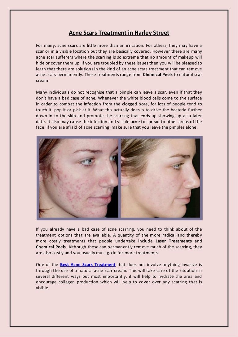 e7b53a21bd Harley Street Skin Clinic can offer you many different skin care benefits