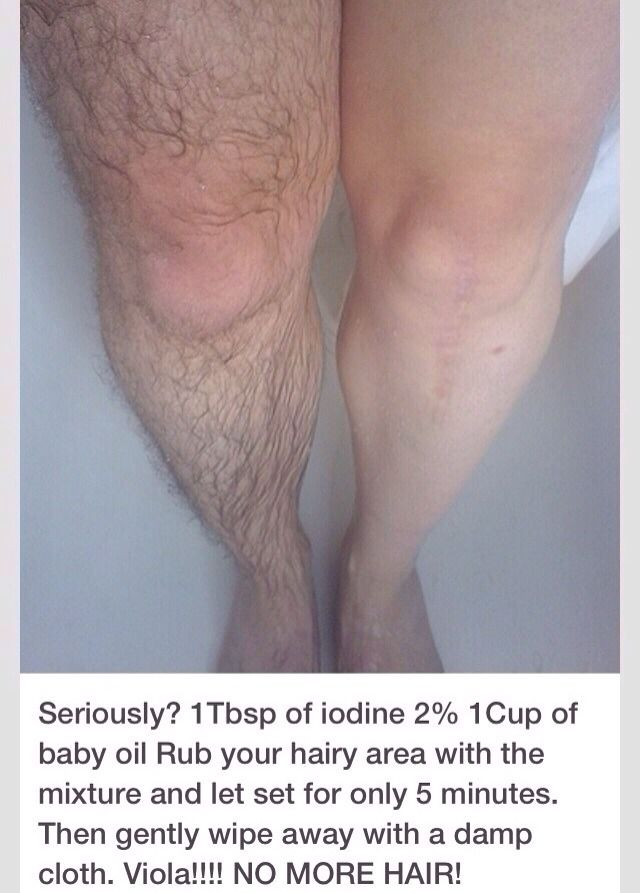 Can You Get Acne On Your Legs Remove Leg Hair Without Shaving Simply Soak Your Legs Hair Removal Health And Beauty Tips Unwanted Facial Hair