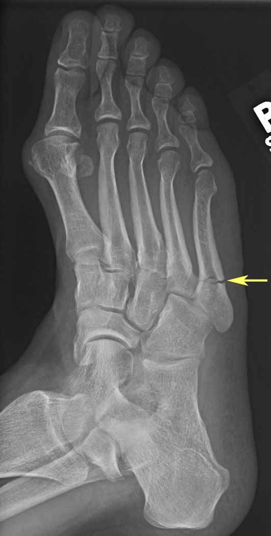 How Long Does It Take To Heal A Broken Foot Bone Tanglewood Foot Specialists Broken Foot Broken Bone Heal Broken Bones