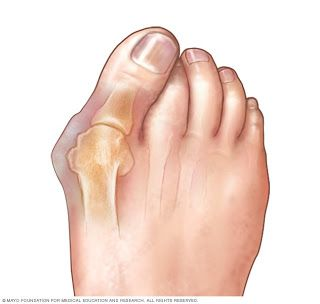 Elderly Companion Care Bunions What Are They And How To Fix Them Feet Care Gel Toes Bunion