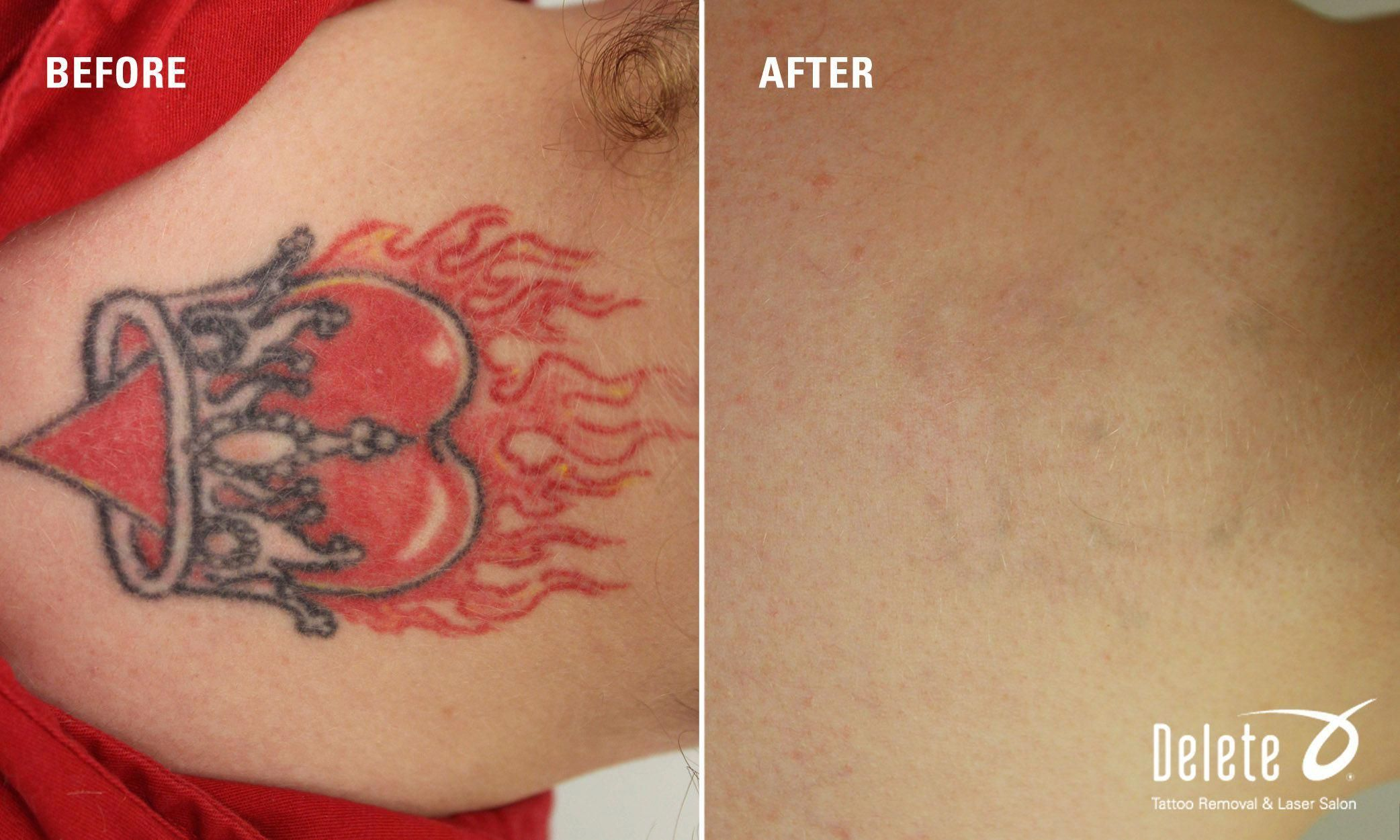 The Summer Of Extreme Temperatures Continues This Week S Before After Picoway Laser Tattoo Removal Is Hot When The F Tattoos Laser Tattoo Tattoo Removal