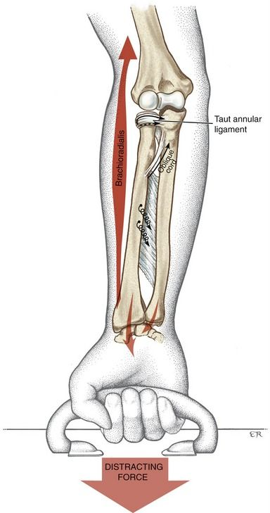 Elbow and Forearm   Clinical Gate   Physical therapy ...