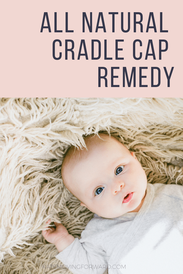 All Natural Cradle Cap Remedy Perfect For Dry Flaky Baby Scalp My Son S Baby Dandruff Is Gone Cradlecapre Cradle Cap Remedies Baby Cradle Cap Cradle Cap