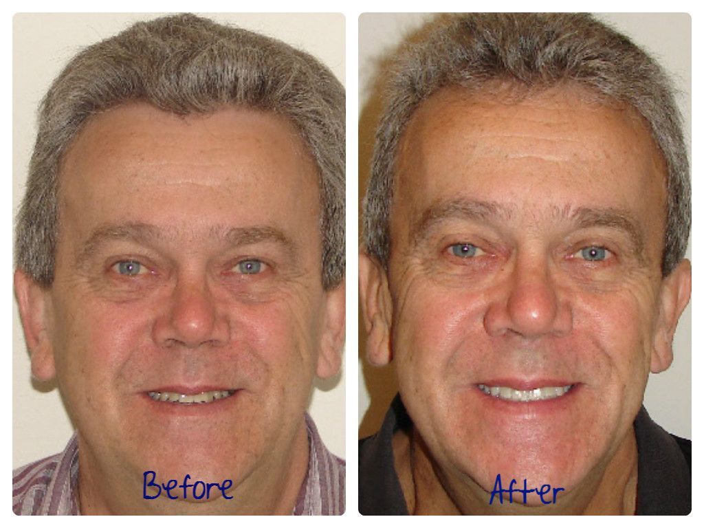 Before and After Actual Patient of Dr. Baby and Dr