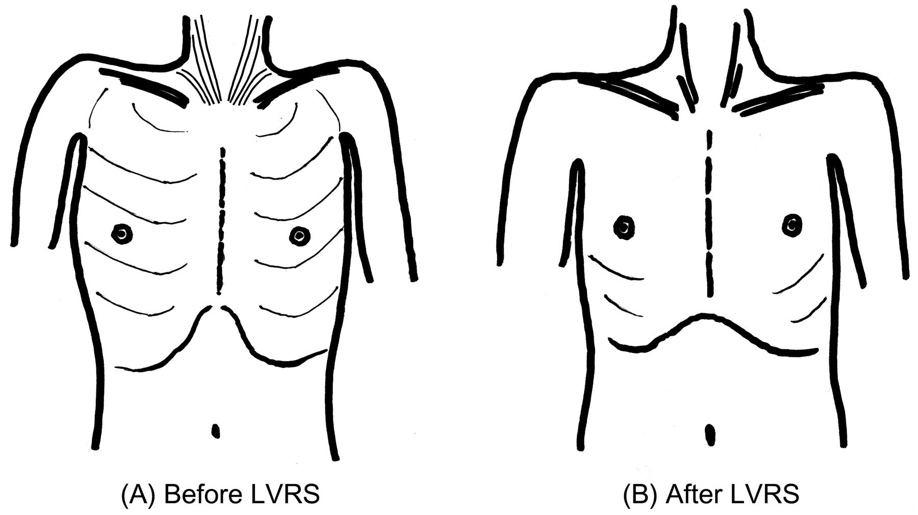 Background: Patients with severe pulmonary emphysema have a greatly increased oxygen cost of breathing (O2 cost), and this is the cause of serious malnutrition, or respiratory cachexia, in such patients.Study objectives: To clarify the effect of lung volume reduction surgery (LVRS) on respiratory...