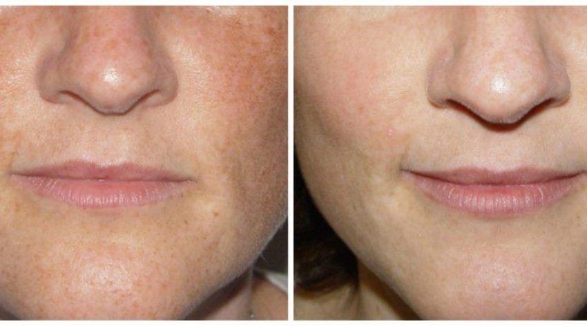 Skincare Skinresults Medicalspa Medspa Antiaging Finelines Hyperpigmentation Ipl Freckles Rosacea Spaatsprin Ipl Laser Medical Spa Hyperpigmentation