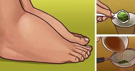remedios para adelgazar los tobillos