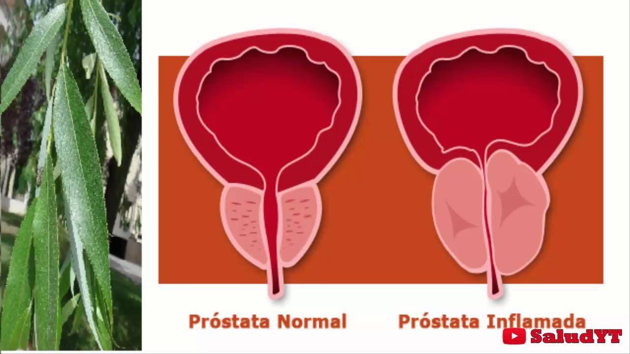 mejor edad de la próstata