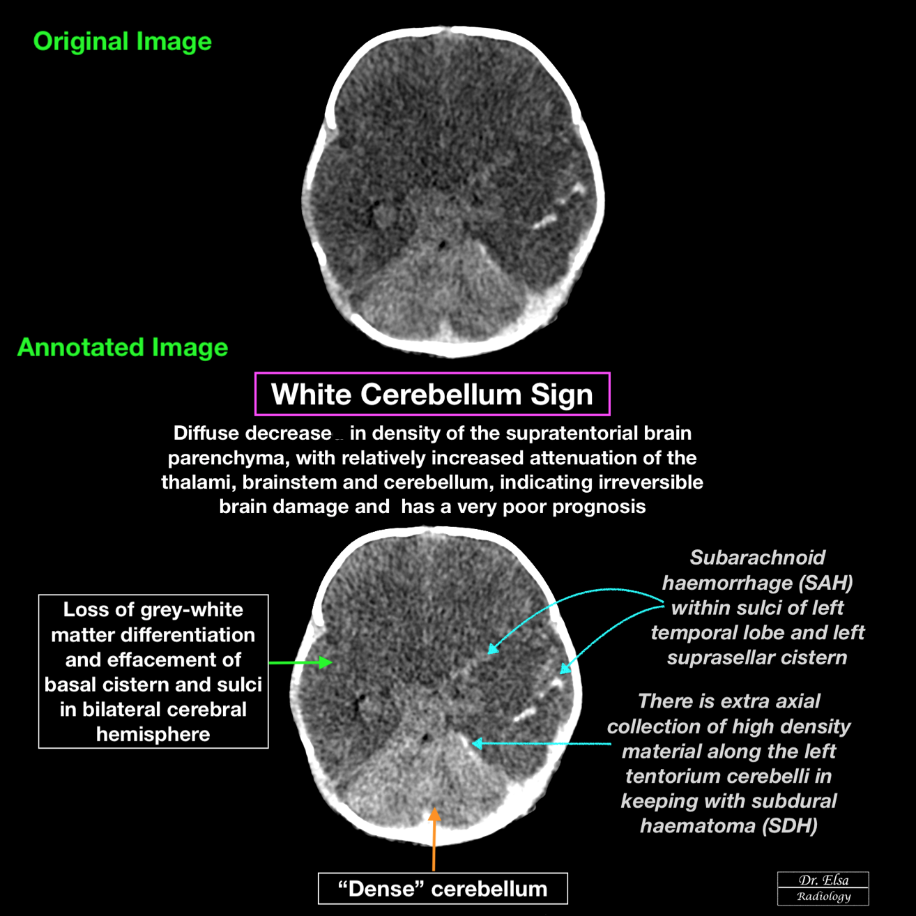 """""""White cerebellum sign"""" (With images) Radiology"""